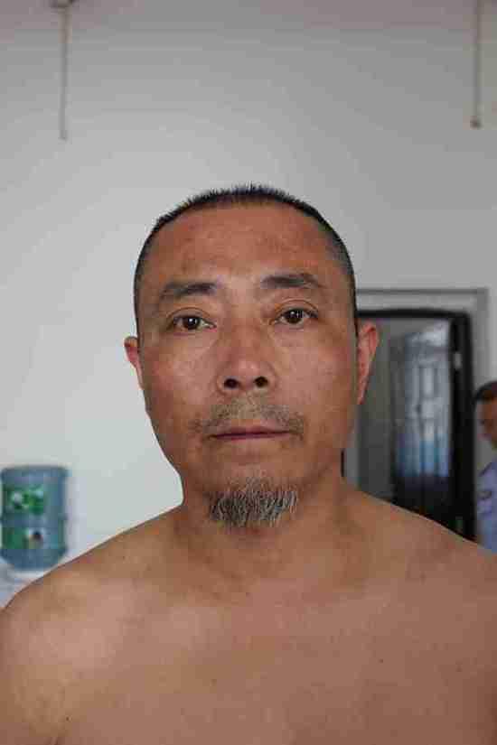 2013年4月22日,王志刚被转送到剑阁县看守所,重新检查了身体状况。照片显示,王志刚的后背有条状色素沉着。